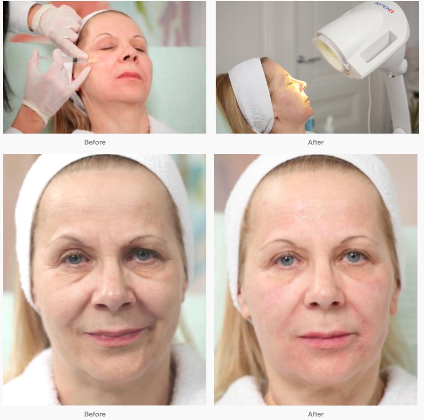 Anti aging behandeling Bioptron
