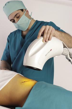 bioptron litteken therapie licht zepter